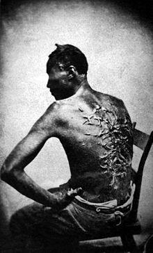 Cicatrices_de_flagellation_sur_un_esclave