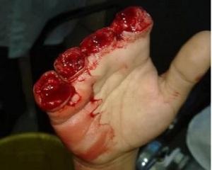 kargari-injured-workers-fingers